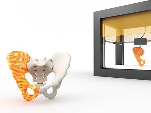 3D-Printed Implants
